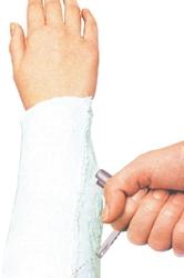 Handtag för gipsöppnare STILLE