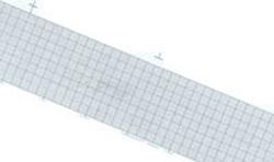 EKG-papper Philips