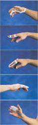 Finger Splint A-2