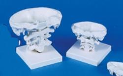 Modell kotor Occiput, Atlas och Axis
